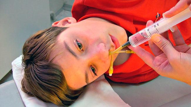 Электрофорез носа в домашних условиях