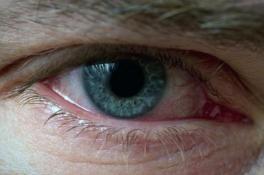 Червоні очі – що робити, як прибрати?
