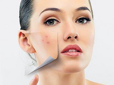 Як позбутися прищів на обличчі вдома – засоби від прищів a1ad842c29ac0